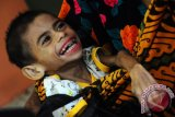 Dinkes: Angka gizi buruk di Kalbar masih terbilang tlinggi
