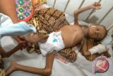 Dinkes Sulteng: Potensi Gizi Buruk Sejak Kehamilan