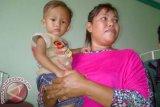 Benda Asing Bersarang di Betis Bocah Dua Tahun