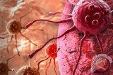 Kabar baik, alat berobat kanker telah dimiliki RSMH, pasien tak perlu lagi ke luar negeri