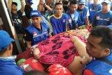 16 dokter dikerahkan, keluarga perempuan gemuk sempat tak setuju dilakukan operasi