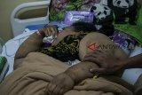 Pasien penderita Obesitas asal Karawang, Sunarti berbaring saat menjalani rawat inap di Rumah Sakit Dr. Hasan Sadikin, Bandung, Jawa Barat, Senin (4/2/2019).  Sunarti yang memiliki berat badan mencapai 148 kg tersebut mendapatkan penanganan dari 11 dokter ahli guna mengetahui kondisi dan indikasi kesehatannya untuk program penurunan berat badan serta menjalani operasi Bariatrik. ANTARA JABAR/Novrian Arbi/agr.