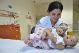 Bayi kembar siam dempet Adam dan Malik mulai jalani operasi pemisahan di Medan