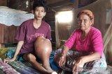 Memet, penderita kanker tulang di Palangka Raya butuh bantuan dermawan