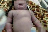 Bayi bermata satu di Siak meninggal dunia