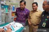 Bayi dengan banyak kelainan lahir di Buleleng, para dokter spesialis terus berkonsultasi
