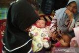 Ini pendapat dokter spesialis kandungan soal bayi lahir tanpa tanda kehamilan