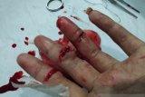 Kawanan begal di Bekasi membacok tangan Fazrin hingga nyaris putus
