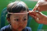 2020 PENANGANAN STUNTING DIPERLUAS. Petugas Posyandu mengukur lingkar kepala seorang anak dalam upaya penanganan stunting di Posyandu Anggrek, Tasikmadu, Malang, Jawa Timur, Sabtu (4/1/2020). Di tahun 2020 pemerintah akan memperluas cakupan penanganan stunting dari 160 menjadi 260 kabupaten/kota dengan anggaran sekitar Rp32 triliun. Antara Jatim/Ari Bowo Sucipto/zk