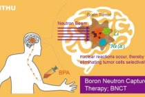 Pusat Boron Neutron Capture Therapy di NTHU mulai obati pasien kanker otak dari luar negeri