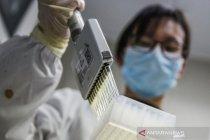 Pakar China: penyelidikan asal-usul COVID-19 harus beralih ke AS