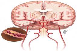 Cegah stroke dengan kontrol faktor risiko