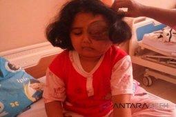 Bocah tumor mata dari Aceh dirujuk ke Jakarta