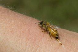 Bisa lebah dapat untuk obati penyakit