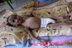 Seorang bocah di Aceh Utara derita gizi buruk