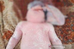 Lagi, bayi Anencephaly lahir di Madina