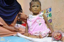 Gizi buruk masih melanda Sampang Madura