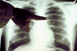 AstraZeneca dan CISC kampanyekan peduli kanker paru