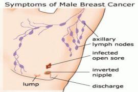 Perlukah para pria periksa payudara sendiri untuk deteksi kanker?