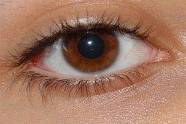 55 Juta Orang Derita Penyakit Mata