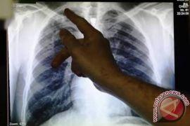 Dinkes Surabaya didorong maksimalkan penanganan TBC