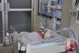 Bayi kembar siam asal Padalarang meninggal dunia
