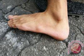 Kenali kondisi kesehatan dari tanda di kaki Anda