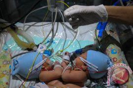 Salah satu bayi kembar siam meninggal