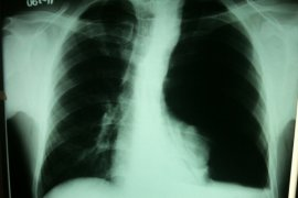 Polusi udara faktor penyebab kanker paru