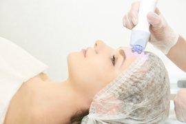 Ultherapy, perawatan yang sedang digandrungi dunia kecantikan