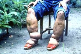 Empat penderita kaki gajah di Ambon rutin berobat