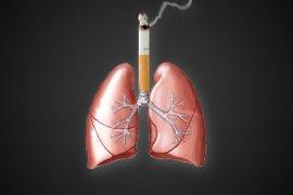 Dokter: Sebagian Besar Penderita Kanker Paru Perokok