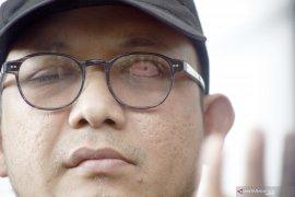 KPK harap tim teknis Polri segera ungkap pelaku penyerangan Novel