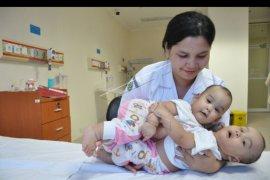 Bayi kembar siam lahir di Medan