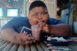 Obesitas capai 97 kg, orang tua berharap pemerintah bantu tangani anaknya