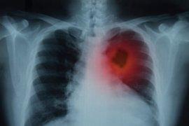 Indonesia darurat kanker prevalensi 1,8 persen