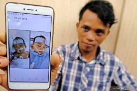 Tim dokter berhasil pisahkan bayi kembar siam (video)
