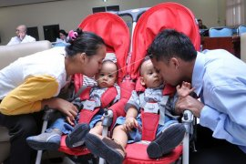 Bayi kembar siam sukses operasi pemisahan