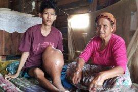 Memet, penderita kangker tulang yang butuh uluran tangan