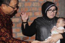Rahima Fachrori bantu pengobatan bayi tanpa anus dan langit-langit mulut