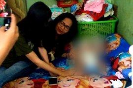 Bayi penderita hydrocephalus dapat bantuan Pemkot Surabaya