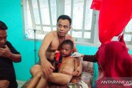 Tiga anak di Gorontalo Utara terduga korban gigitan anjing gila