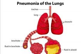 Waspada, penderita pneumonia berat di Wuhan meninggal