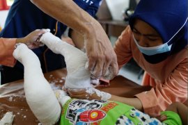 Lombok Care: Ratusan anak di Lombok terlahir kaki pengkor