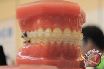 Kawat gigi bukan aksesoris gigi