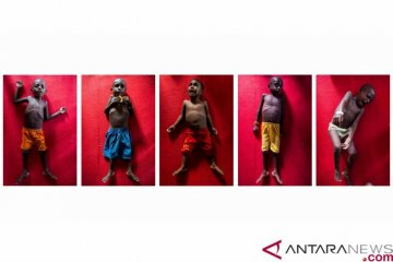 oto kolase anak-anak yang mengidap penyakit malaria, campak dan gizi buruk asal Distrik Jetsy, Kabupaten Asmat, Papua, Rabu (24/1/2018). ANTARA FOTO/M Agung Rajasa. ANTARA FOTO/M Agung Rajasa.