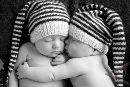 Orang tua bayi kembar siam kesulitan biaya operasi