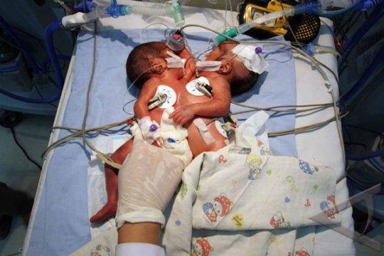 Bayi Kembar Siam Dempet Dada Akhirnya Meninggal