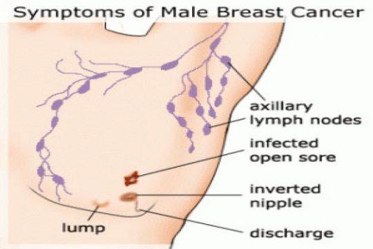Tak semua penderita kanker payudara harus kemoterapi