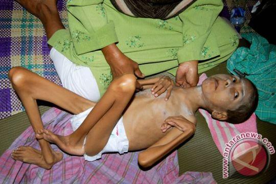 Anak TKI derita gizi buruk